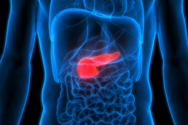 cancer de pancreas cryo