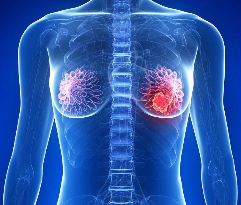 cáncer de mamas causas