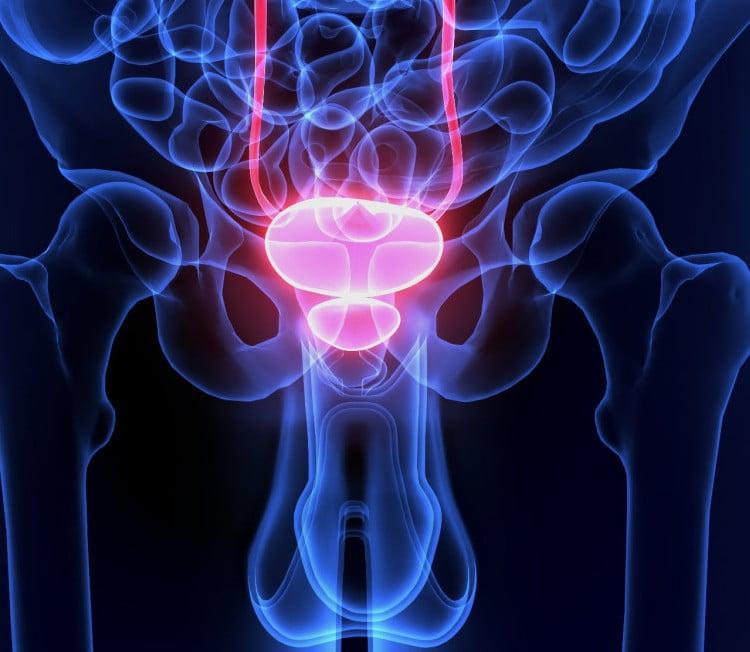 cancer prostata cryo