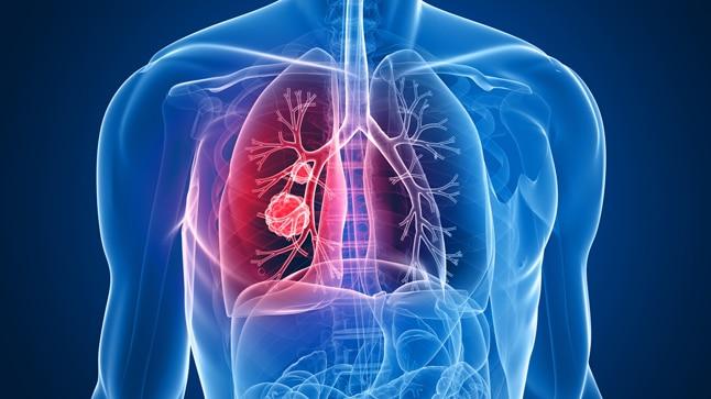 cancer pulmon cryo