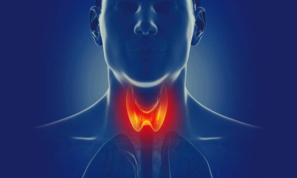 cancer tiroides cryo