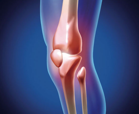 el cancer de hueso en cryo
