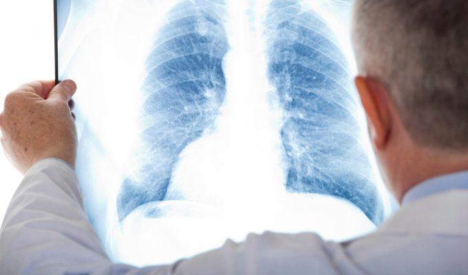 Datos sobre el cáncer de pulmón en México