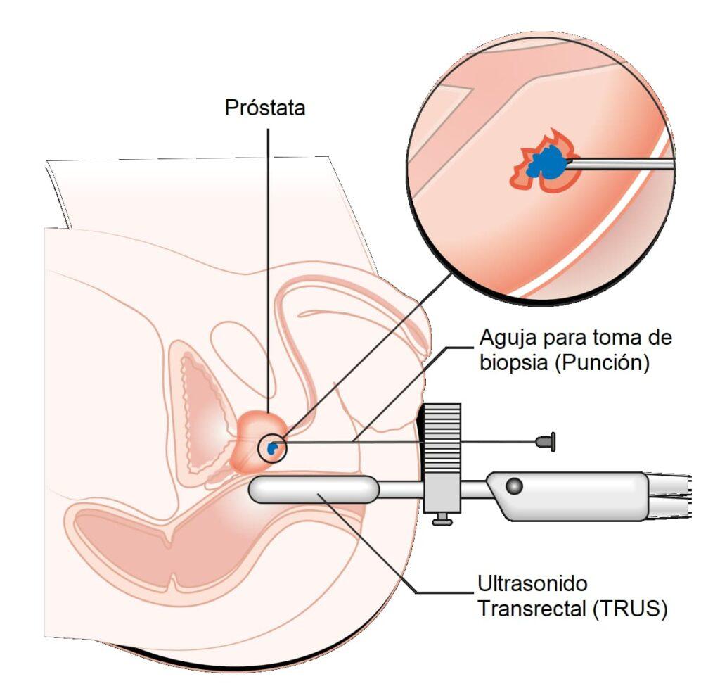 Biopsia de próstata por fusión de imágenes